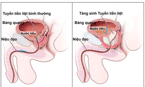 Ung thư tuyến tiền liệt và ung thư phổi